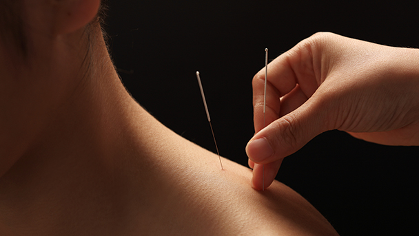 Acupuncture is best way to treat back pain, study finds